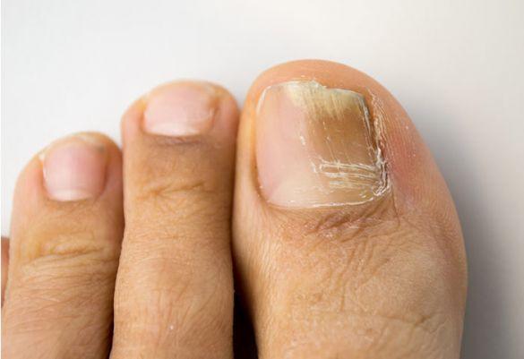 Streifen auf fingernagel