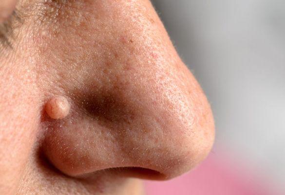 Behandlung Papillomavirus am Augenlid