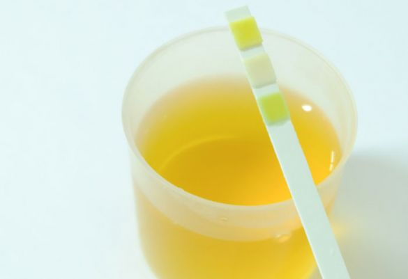 Gelber Urin Schwangerschaft Trotz Viel Trinken